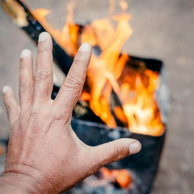 Basic Guide to Treating Burns in Kids when Camping