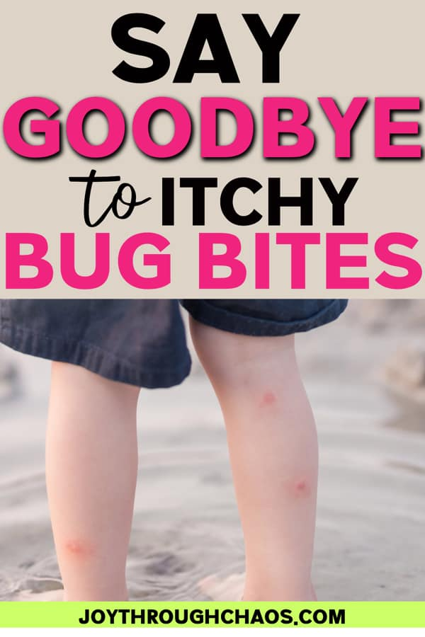 Red bug bites on child's legs